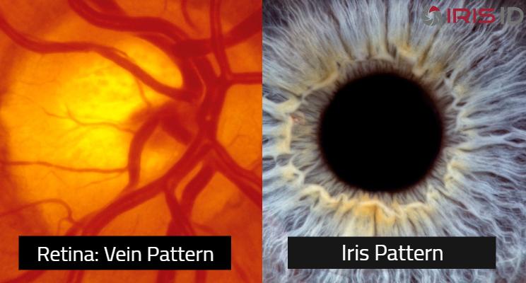 Image of retina and iris